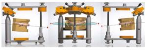L'attelle occlusale imprimée en 3D procure un soulagement en quelques semaines seulement
