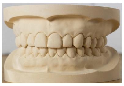 Traitements dentaires prothétiques: moulages en pierre traditionnels vs moulages imprimés en 3D