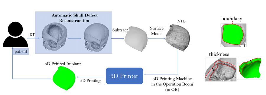 Logiciel automatisé gratuit pour concevoir des implants crâniens imprimables en 3D