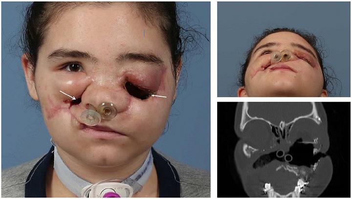 L'impression 3D et la chirurgie virtuelle aident à réparer les dommages au visage du patient