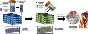 L'impression 3D cryogénique améliore la bio-impression pour la régénération osseuse