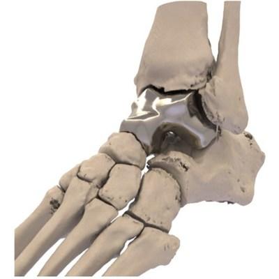 L'orthopédie additive obtient l'approbation de la FDA pour le premier implant Talus imprimé en 3D