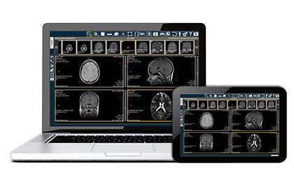 Read more about the article IBM et Ricoh s'associent pour créer des modèles anatomiques imprimés en 3D