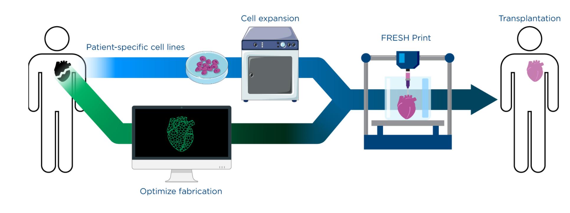 You are currently viewing Ethicon de J&J et FluidForm vont collaborer à la création de tissus humains avec la bioprinture FRESH.
